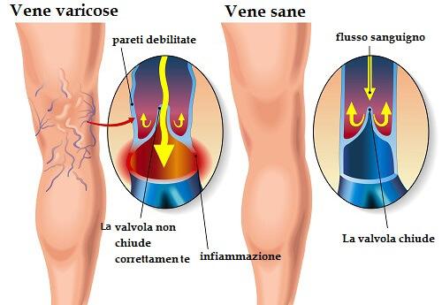 Sostenendo una colonna varicosity